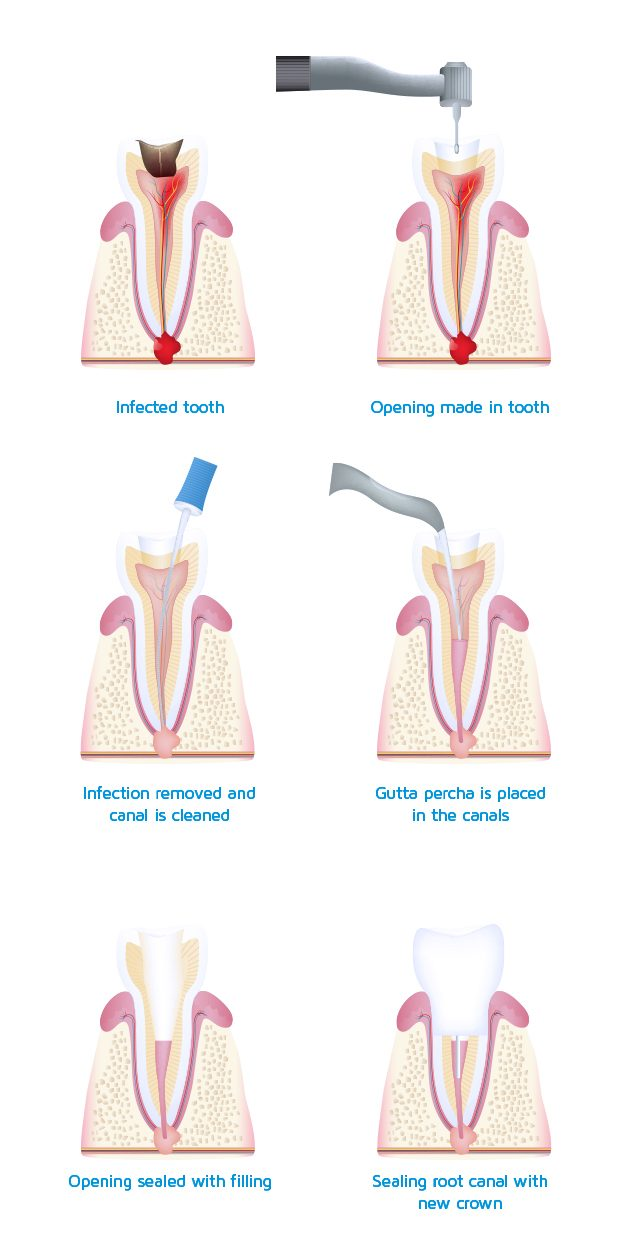 General dental root canal endodontics treatment Oakleigh Melbourne