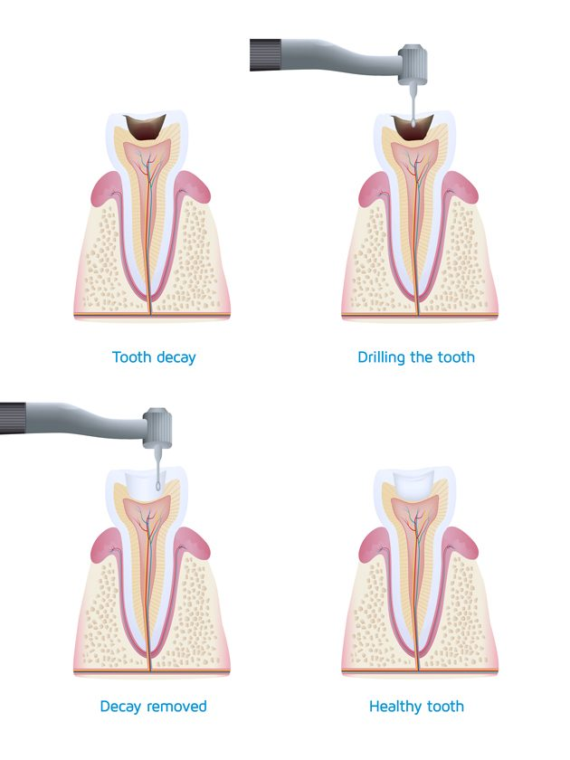 General dental tooth decay dental caries treatment Oakleigh Melbourne