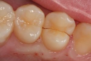 Cracked tooth emergency