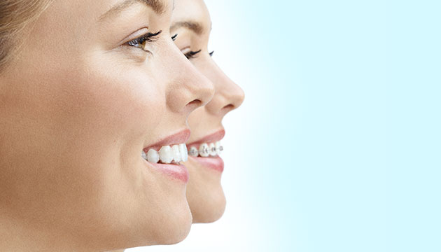 Invisalign clear braces comparison orthodontics dentist Oakleigh Melbourne