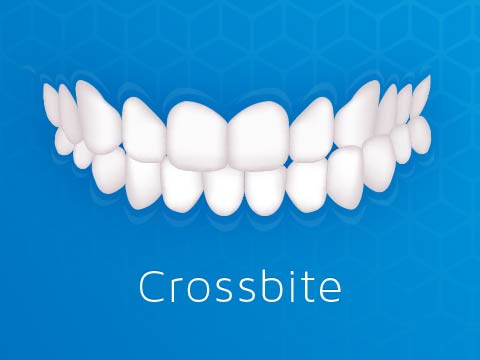 Invisalign Clear Braces Issue Crossbite Oakleigh