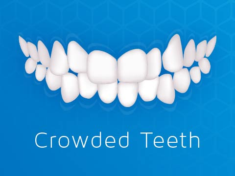 Invisalign Clear Braces Issue Crowded Teeth Crowding Oakleigh