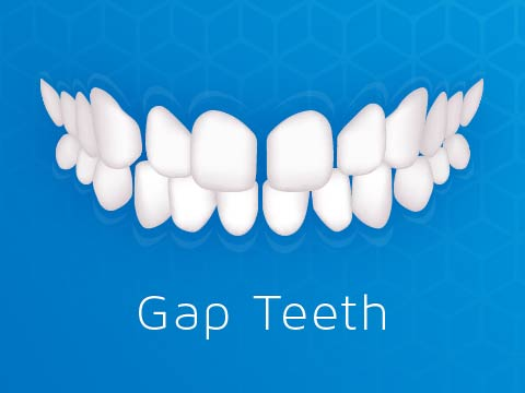 Invisalign Clear Braces Issue Gap Teeth Gappy Smile Oakleigh