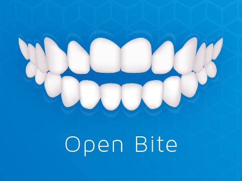 Invisalign Clear Braces Issue Open Bite Oakleigh