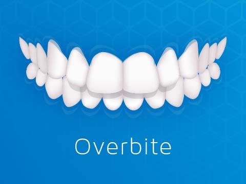Invisalign Clear Braces Issue Overbite Oakleigh