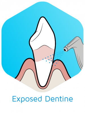 Guided-Biofilm-Therapy-Oral-Cleaning-Exposed-Dentine