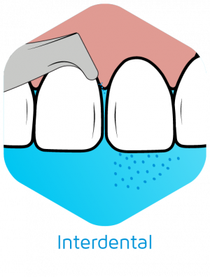 Guided-Biofilm-Therapy-Oral-Cleaning-Interdental